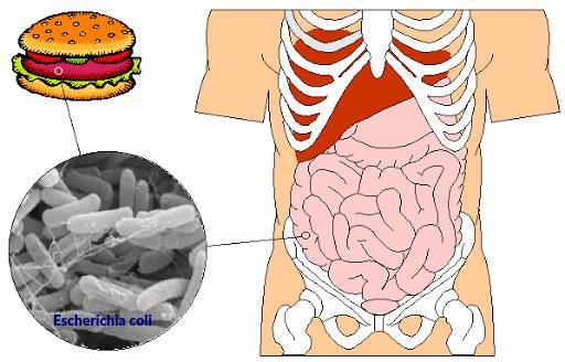 Escherichia coli en la carne